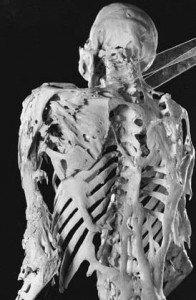 fop skeleton